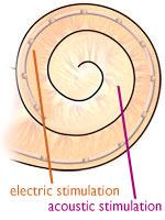 Surditatea partiala: o noua tehnologie de recuperare a auzului
