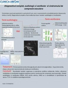 Diagnosticul complet, audiologic si vestibular al sindromului de compresie vasculara