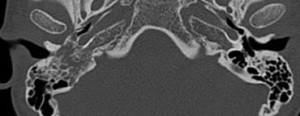 Paragangliom jugulo-timpanic cu extensie la mastoida