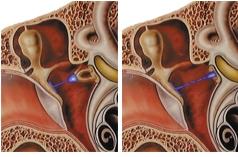 Colesteatomul – timpanoplastia inchisa