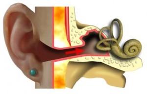 Vestibulometria: testarea echilibrului in bolile urechii interne