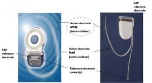 Implantul cohlear – cum functioneaza?