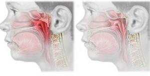 Operatia de vegetatii adenoide (polipi)