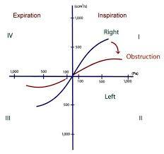 Interpretarea graficului de rinomanometrie 4-faze