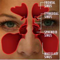 Deschiderea sinusului maxilar (sinuzita)